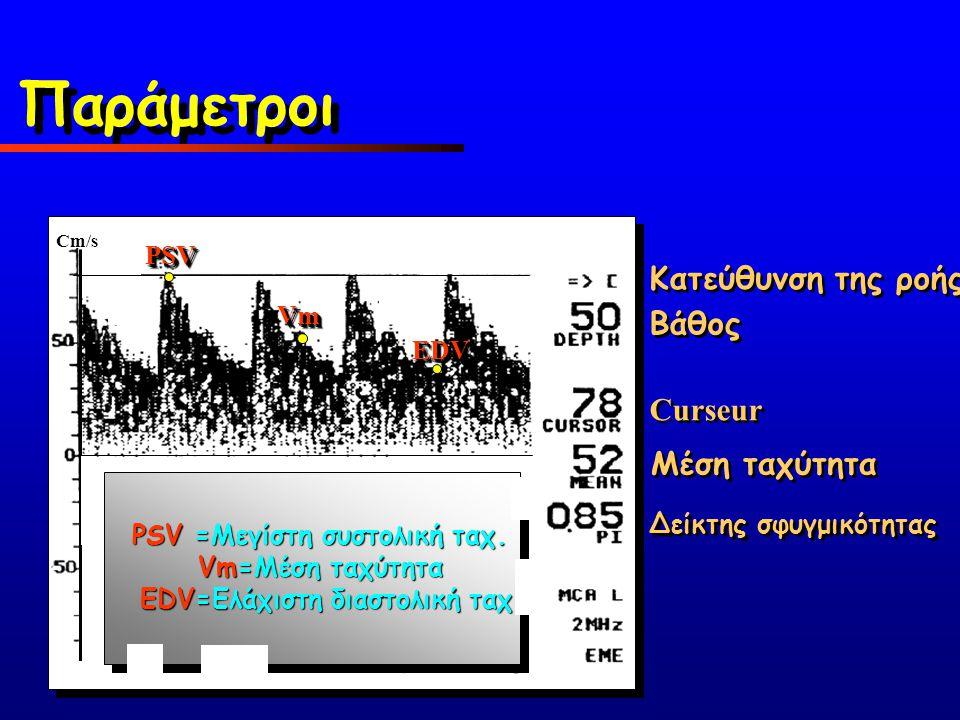 PSV =Μεγίστη συστολική ταχ. EDV=Ελάχιστη διαστολική ταχ.