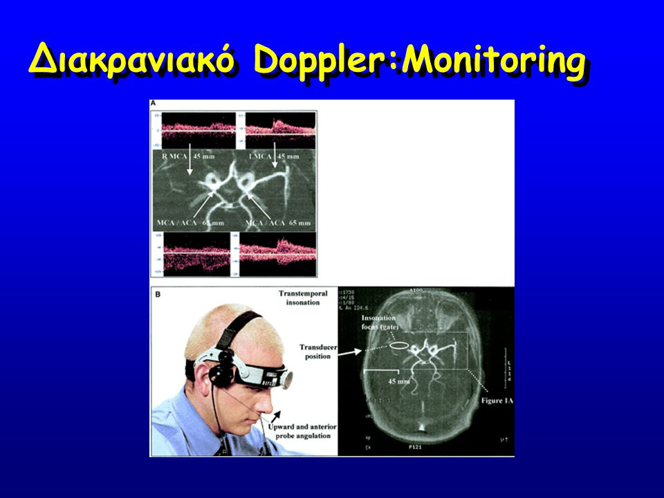 Διακρανιακό Doppler:Monitoring
