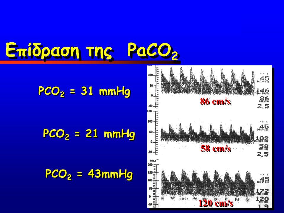 Επίδραση της PaCO2 PCO2 = 31 mmHg PCO2 = 21 mmHg PCO2 = 43mmHg 86 cm/s