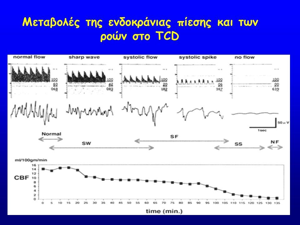 Μεταβολές της ενδοκράνιας πίεσης και των ροών στο TCD