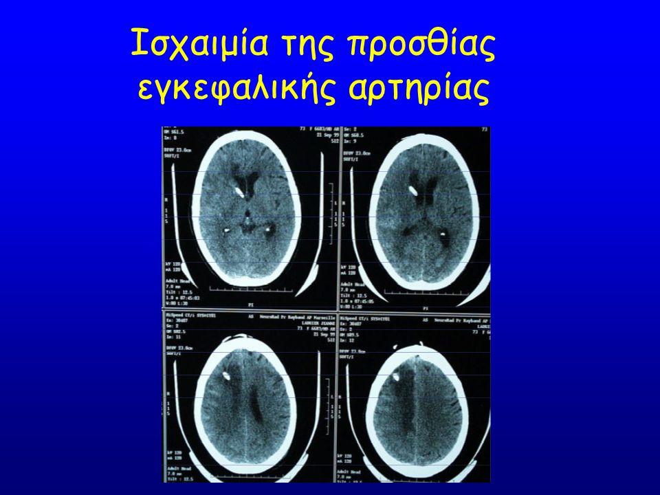 Ισχαιμία της προσθίας εγκεφαλικής αρτηρίας