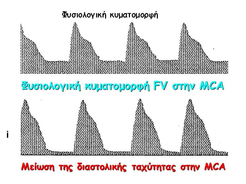 Φυσιολογική κυματομορφή FV στην MCA