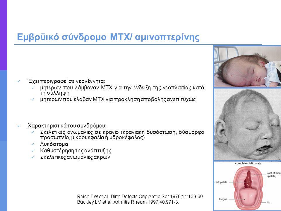 Εμβρϋικό σύνδρομο ΜΤΧ/ αμινοπτερίνης