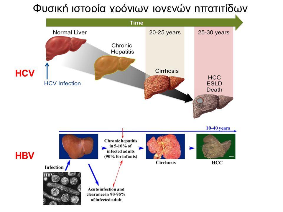 Φυσική ιστορία χρόνιων ιογενών ηπατιτίδων