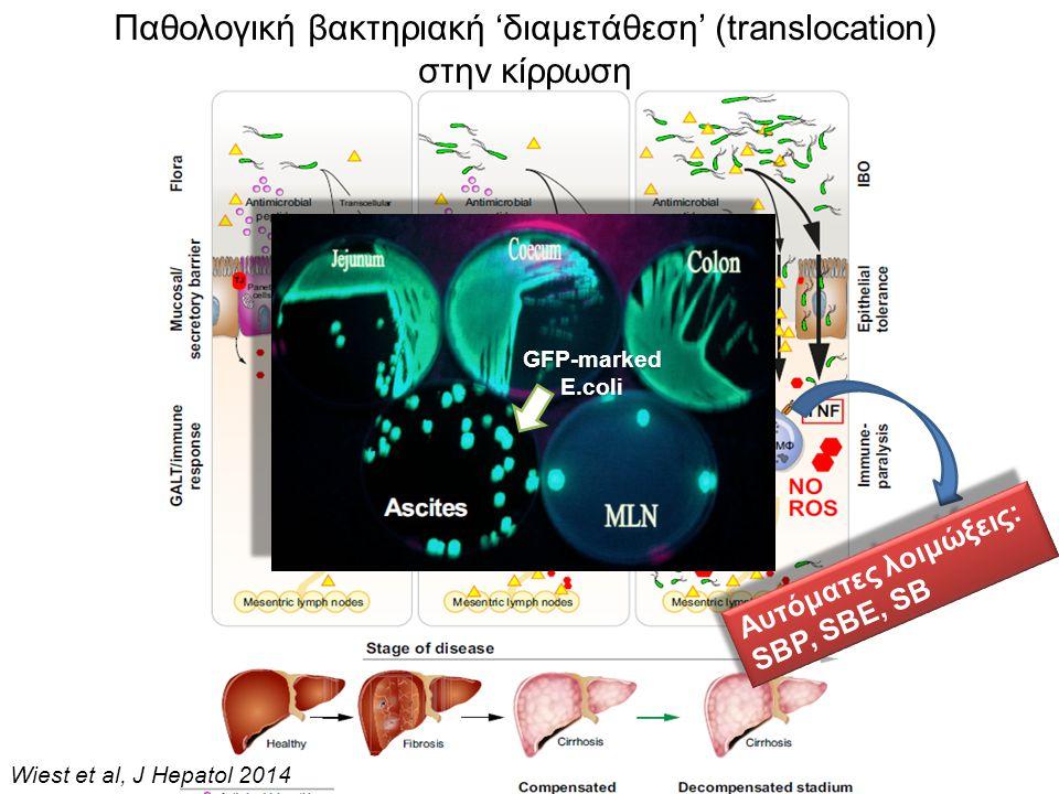 Παθολογική βακτηριακή 'διαμετάθεση' (translocation) στην κίρρωση