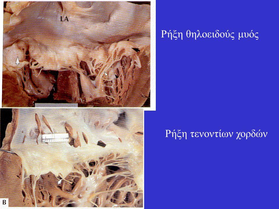 Ρήξη θηλοειδούς μυός Ρήξη τενοντίων χορδών