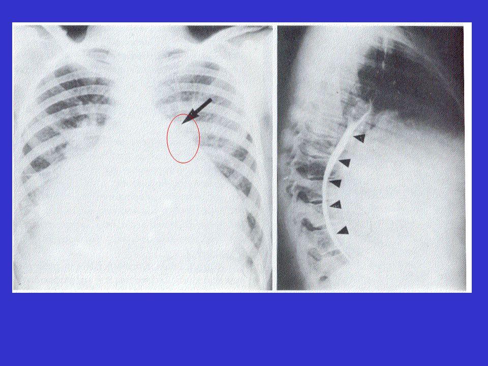 Προπέτεια τόξου πνευμονικής