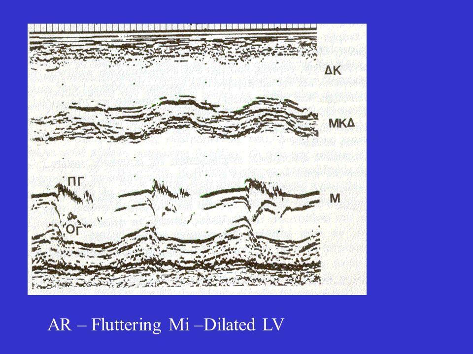 AR – Fluttering Mi –Dilated LV
