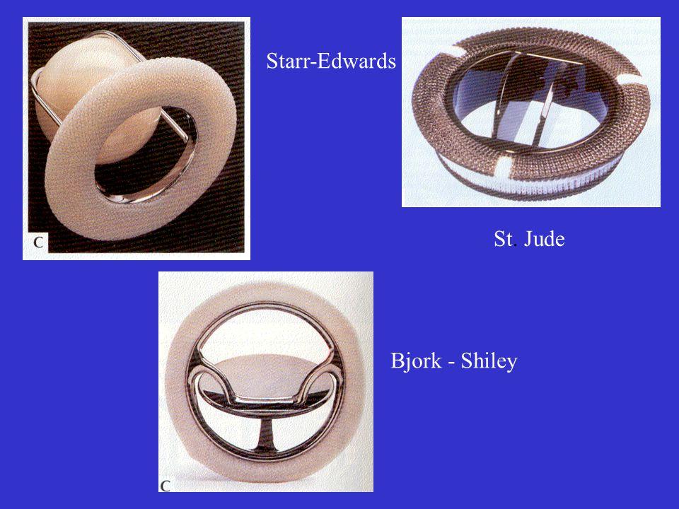 Starr-Edwards St. Jude Bjork - Shiley