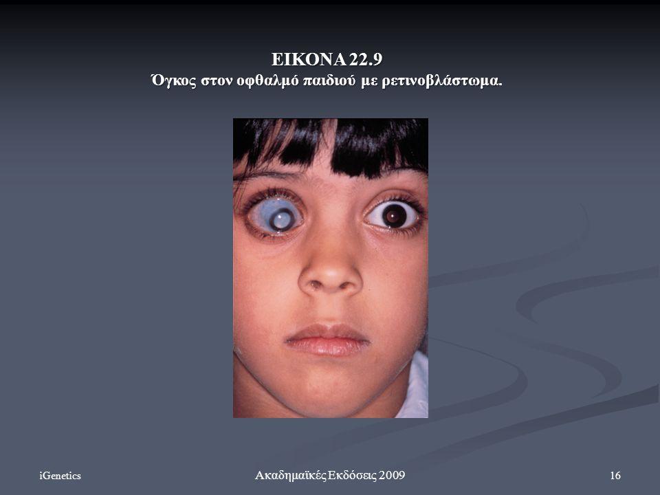 Όγκος στον οφθαλμό παιδιού με ρετινοβλάστωμα.