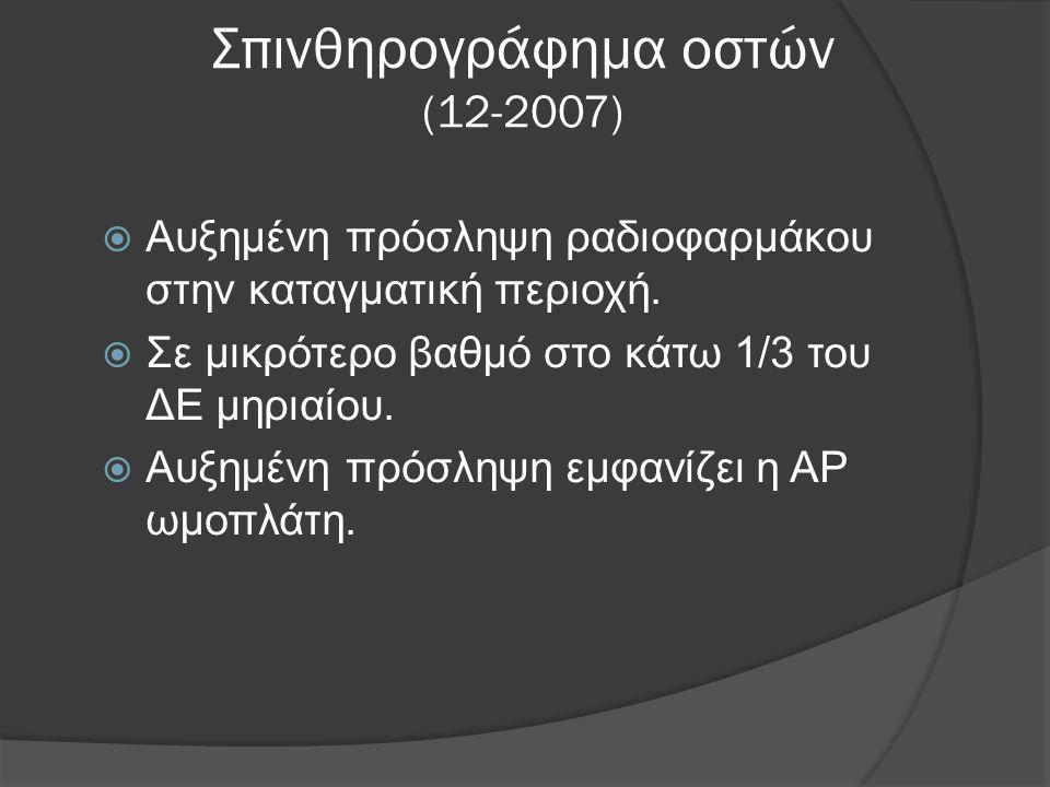 Σπινθηρογράφημα οστών (12-2007)