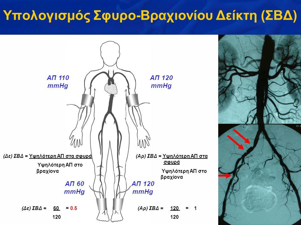 Υπολογισμός Σφυρο-Βραχιονίου Δείκτη (ΣΒΔ)