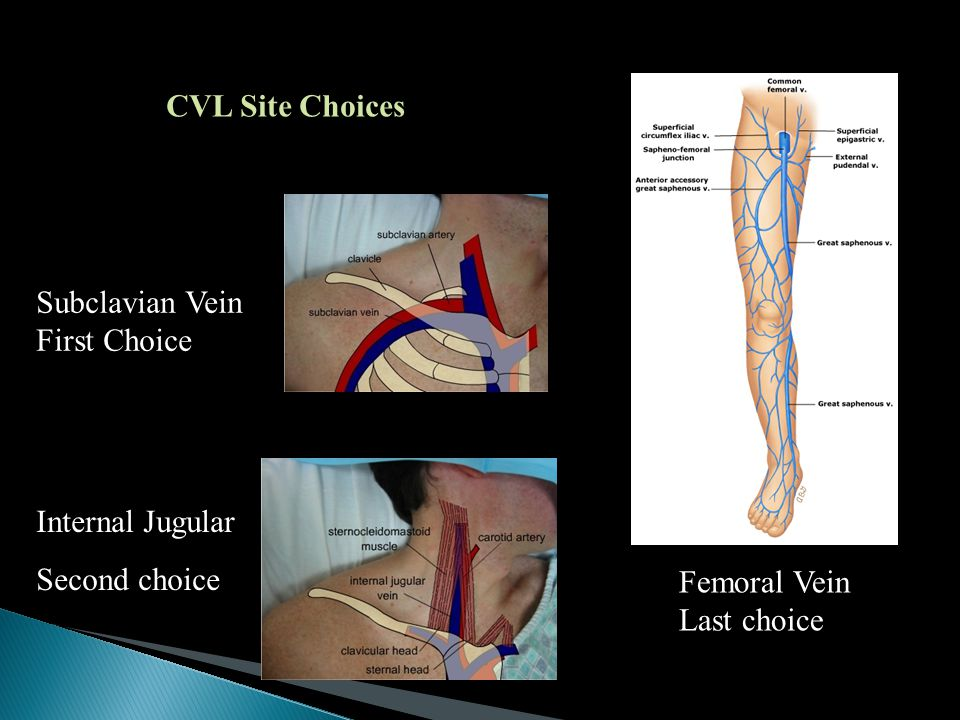 CVL Site Choices Subclavian Vein First Choice. Internal Jugular. Second choice. Femoral Vein.