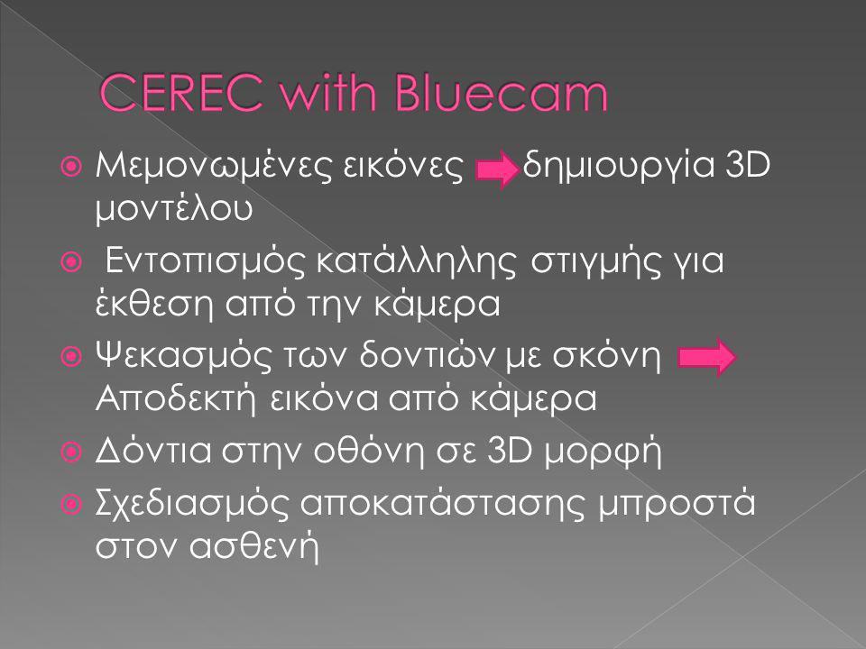 CEREC with Bluecam Μεμονωμένες εικόνες δημιουργία 3D μοντέλου