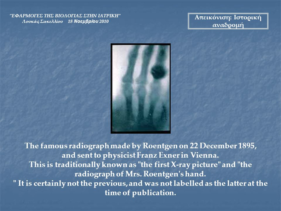 The famous radiograph made by Roentgen on 22 December 1895,