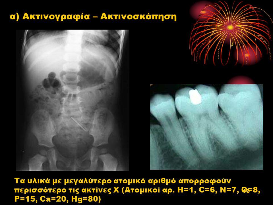 α) Ακτινογραφία – Ακτινοσκόπηση