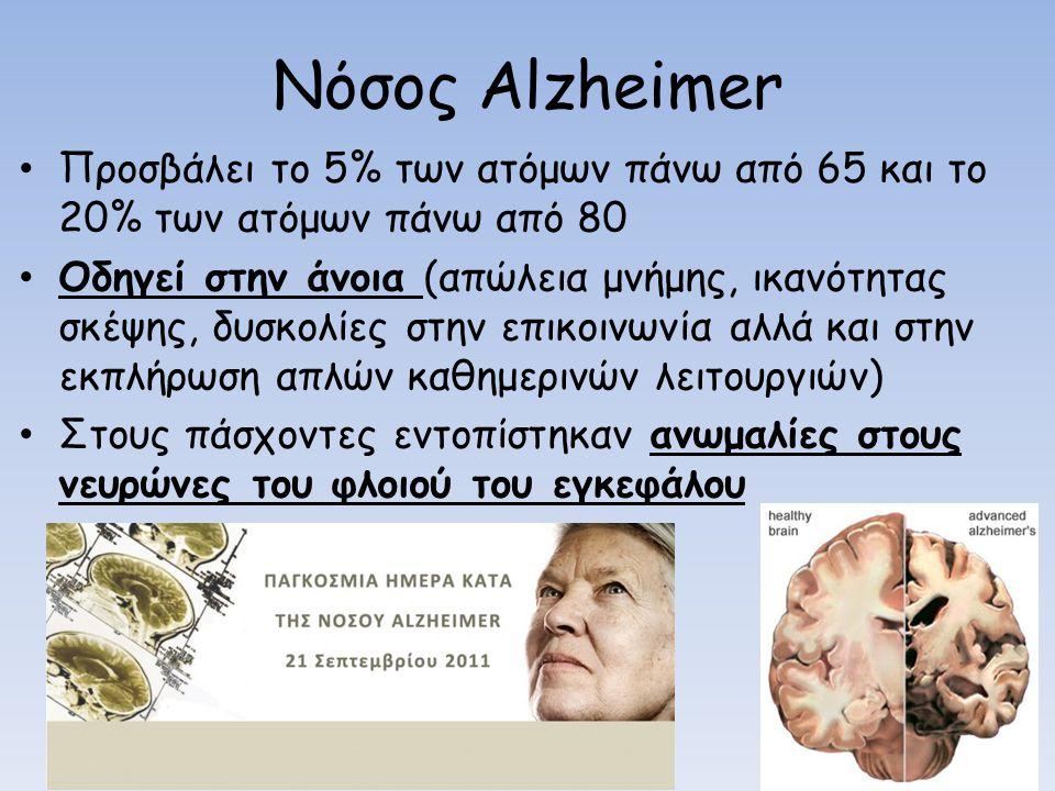 Nόσος Alzheimer Προσβάλει το 5% των ατόμων πάνω από 65 και το 20% των ατόμων πάνω από 80.