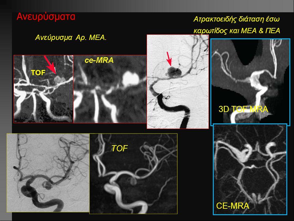 Ανευρύσματα 3D TOF MRA TOF CE-MRA