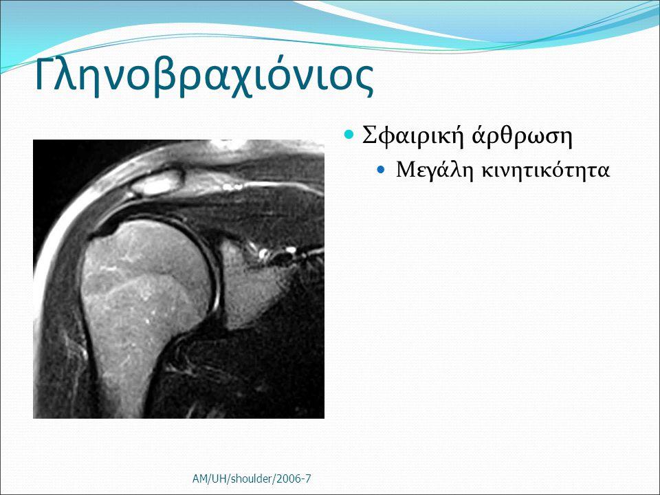 Γληνοβραχιόνιος Σφαιρική άρθρωση Μεγάλη κινητικότητα