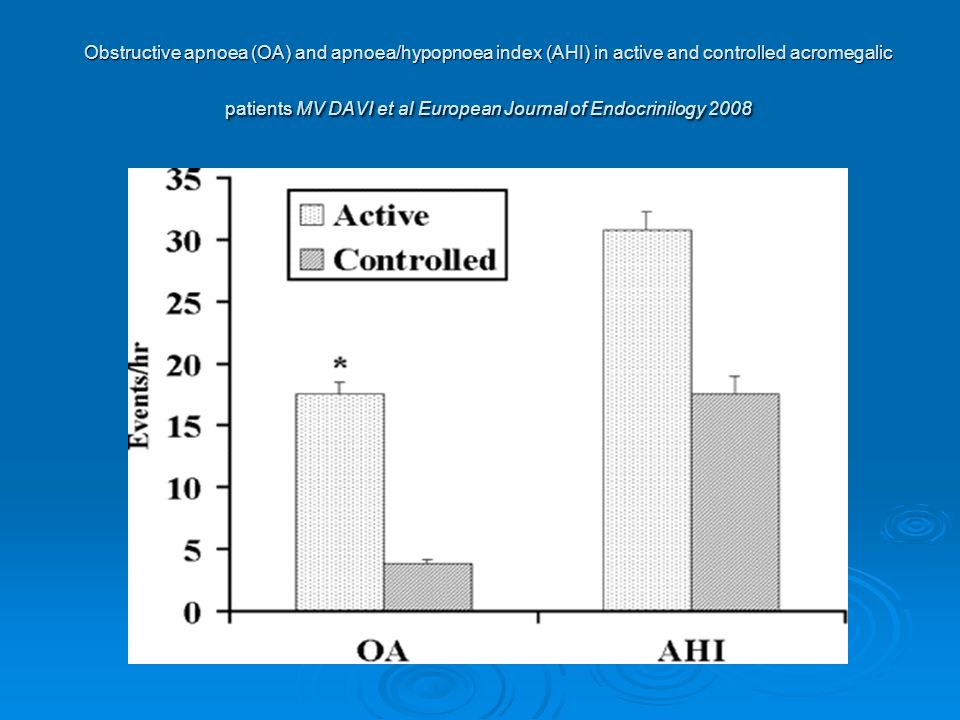 Obstructive apnoea (OA) and apnoea/hypopnoea index (AHI) in active and controlled acromegalic patients MV DAVI et al European Journal of Endocrinilogy 2008