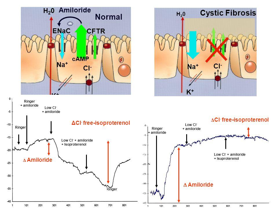 Low Cl- + amiloride 100µM + Isuprel 10 µM