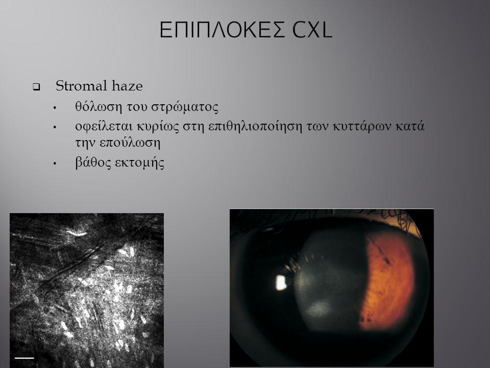 ΕΠΙΠΛΟΚΕΣ CXL Stromal haze θόλωση του στρώματος