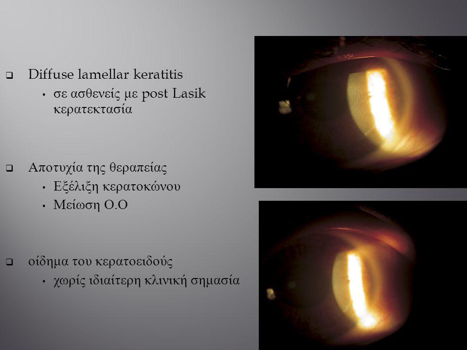 Diffuse lamellar keratitis