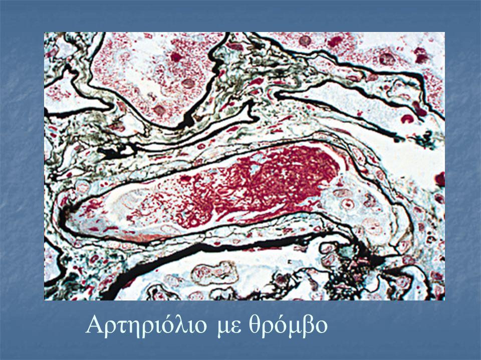 Αρτηριόλιο με θρόμβο