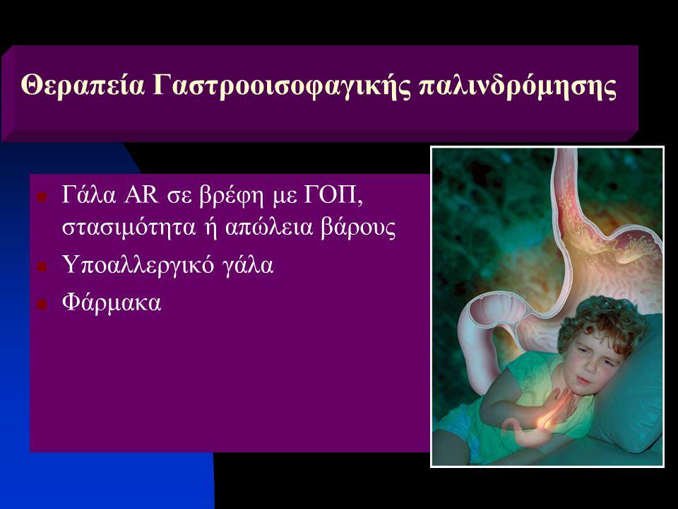 Θεραπεία Γαστροοισοφαγικής παλινδρόμησης