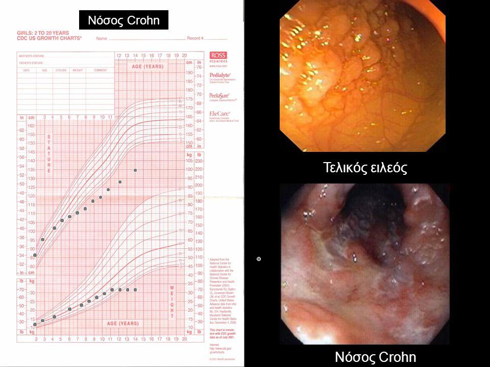 Νόσος Crohn Τελικός ειλεός Νόσος Crohn