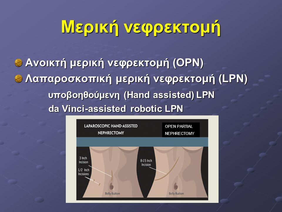 Μερική νεφρεκτομή Ανοικτή μερική νεφρεκτομή (OPN)