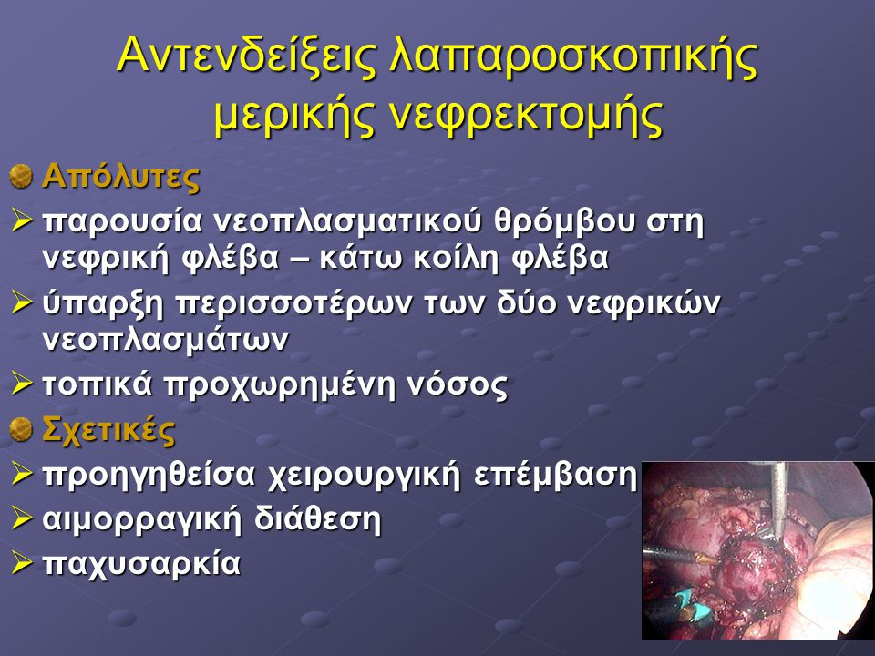 Αντενδείξεις λαπαροσκοπικής μερικής νεφρεκτομής