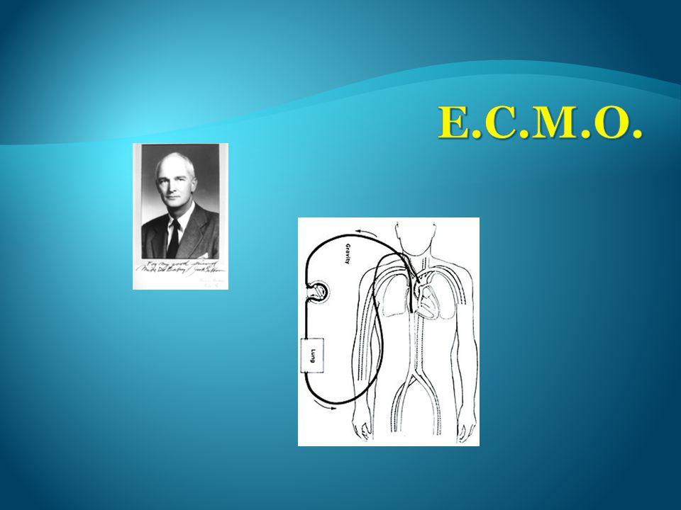 E.C.M.O.