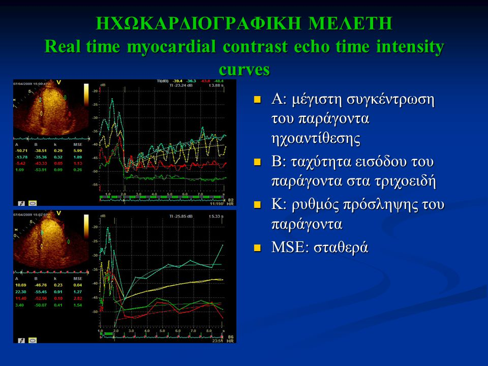 ΗΧΩΚΑΡΔΙΟΓΡΑΦΙΚΗ ΜΕΛΕΤΗ Real time myocardial contrast echo time intensity curves