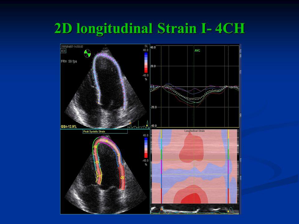2D longitudinal Strain I- 4CH