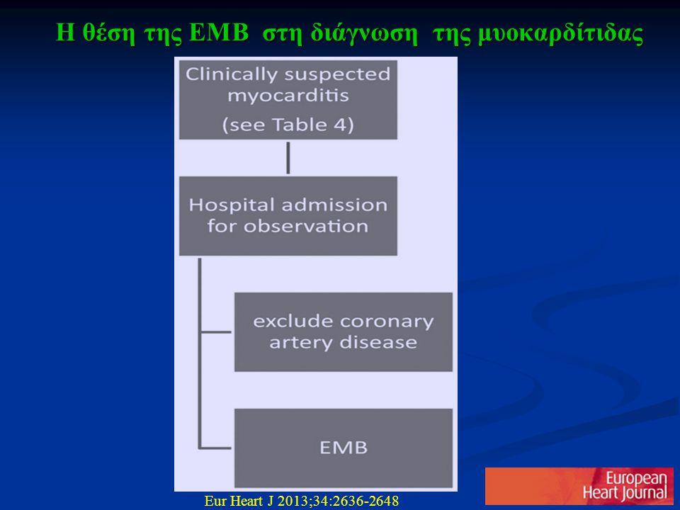 Η θέση της ΕΜΒ στη διάγνωση της μυοκαρδίτιδας