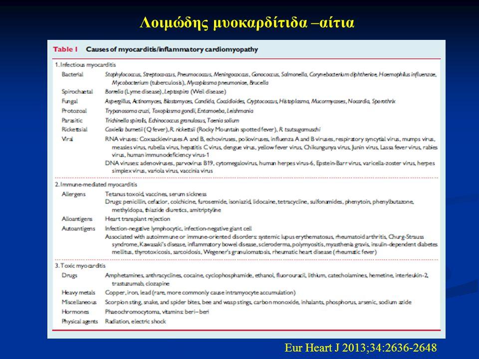 Λοιμώδης μυοκαρδίτιδα –αίτια