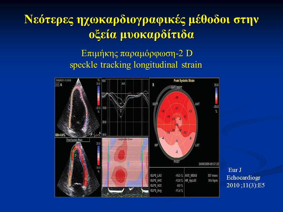 Nεότερες ηχωκαρδιογραφικές μέθοδοι στην οξεία μυοκαρδίτιδα