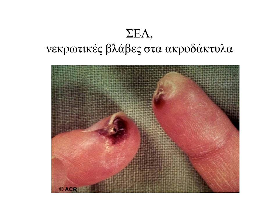 ΣΕΛ, νεκρωτικές βλάβες στα ακροδάκτυλα