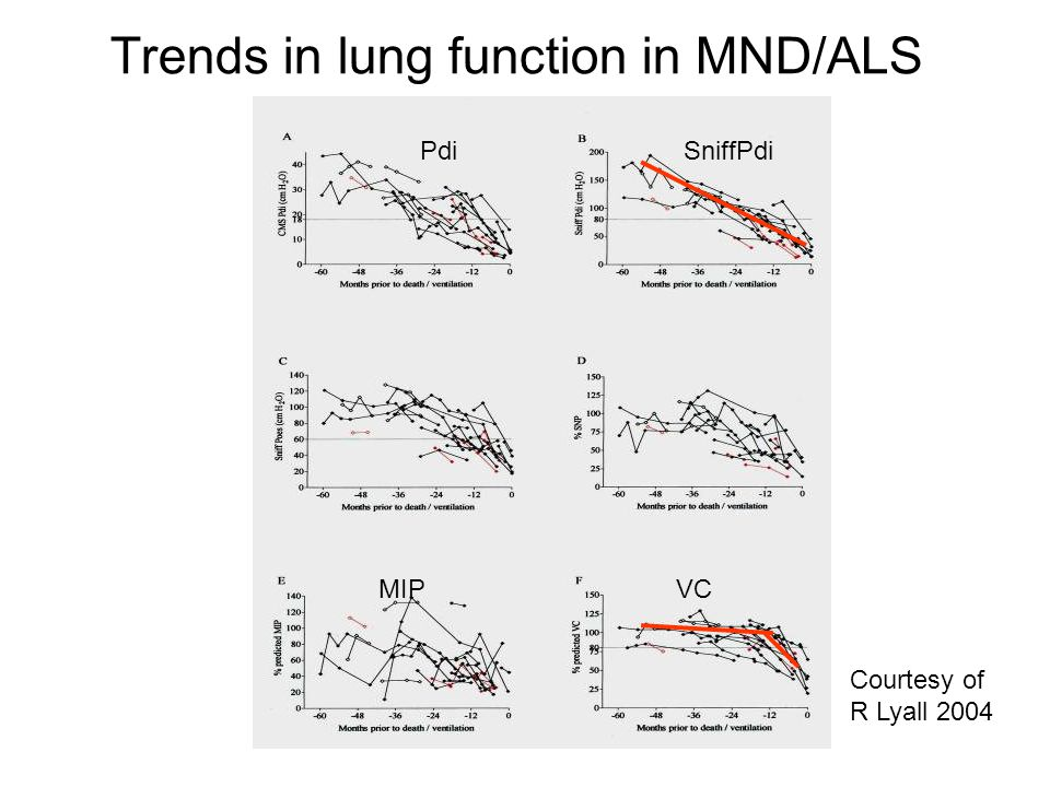 Trends in lung function in MND/ALS