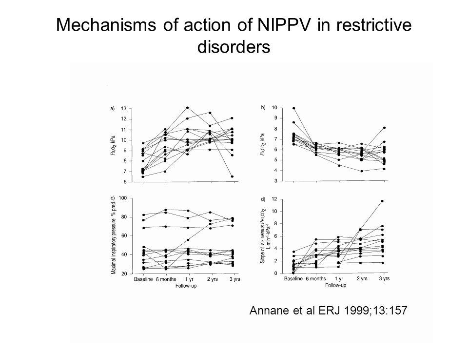 Mechanisms of action of NIPPV in restrictive disorders