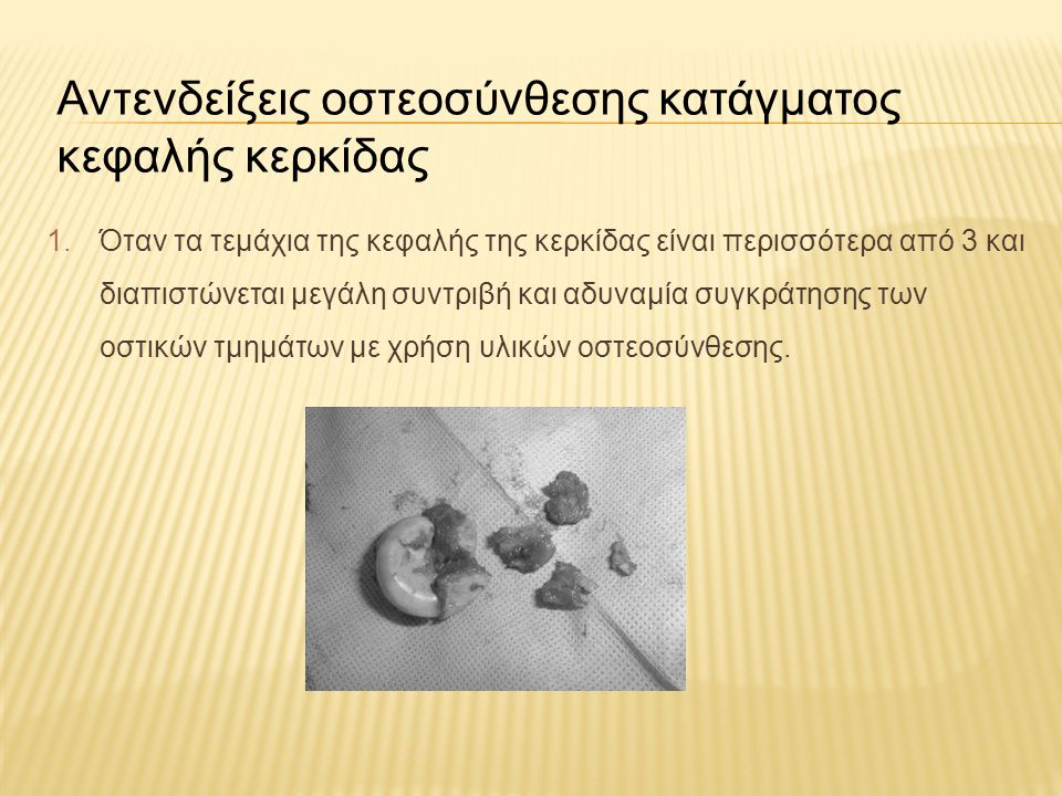Αντενδείξεις οστεοσύνθεσης κατάγματος κεφαλής κερκίδας