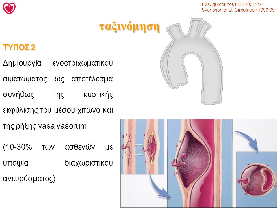 ESC guidelines EHJ 2001;22 Svensson et al. Circulation 1999;99. ταξινόμηση. ΤΥΠΟΣ 2.