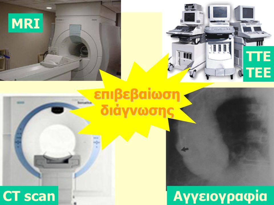 MRI ΤΤΕ ΤΕΕ επιβεβαίωση διάγνωσης CT scan Aγγειογραφία