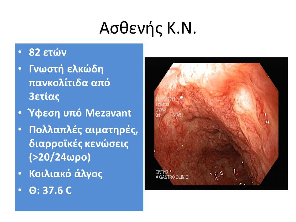 Ασθενής Κ.Ν. 82 ετών Γνωστή ελκώδη πανκολίτιδα από 3ετίας