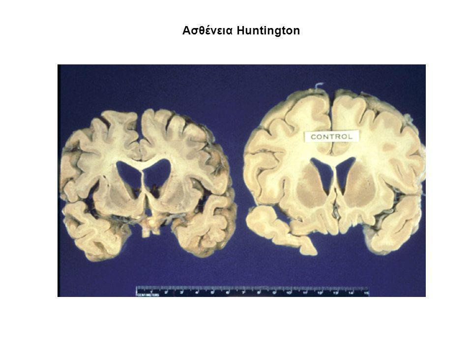 Ασθένεια Ηuntington