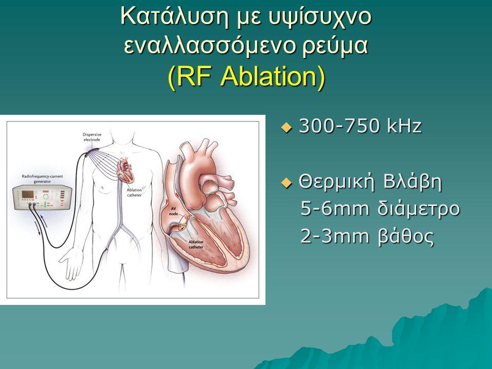 Κατάλυση με υψίσυχνο εναλλασσόμενο ρεύμα (RF Ablation)