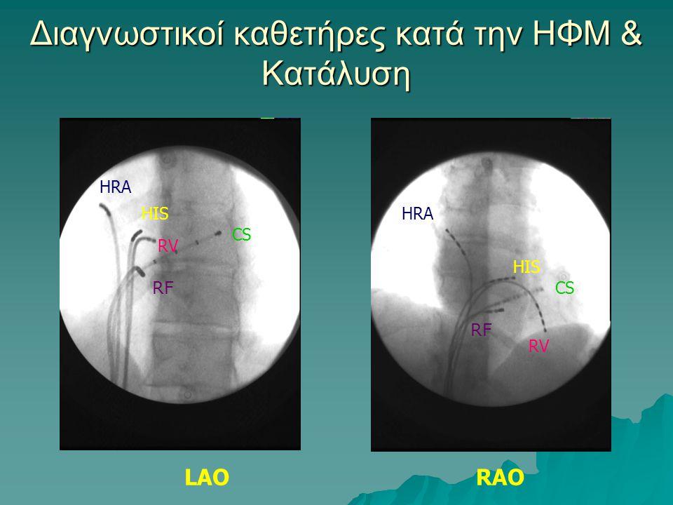 Διαγνωστικοί καθετήρες κατά την ΗΦΜ & Κατάλυση