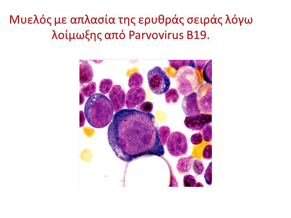 Μυελός με απλασία της ερυθράς σειράς λόγω λοίμωξης από Parvovirus B19.