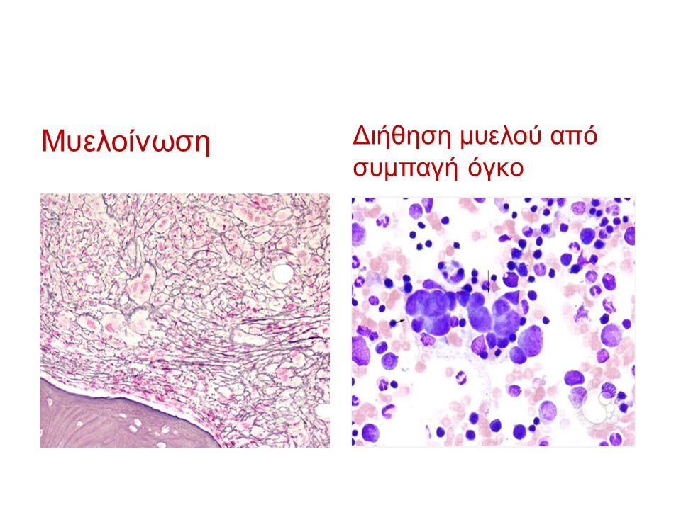 Μυελοίνωση Διήθηση μυελού από συμπαγή όγκο